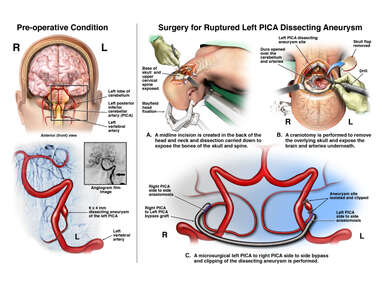 Aneurysm with PICA to  PICA Bypass