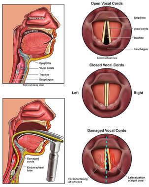 Prolonged Intubation with Damage to the Vocal Cords