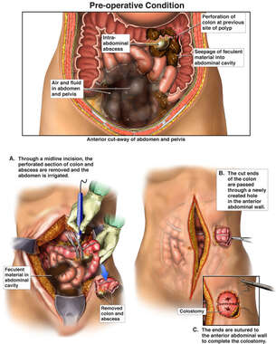Transverse Colectomy