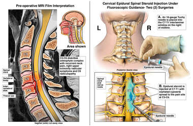Epidural Spinal Injections