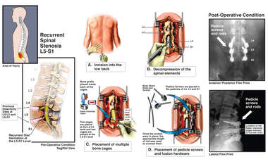 Recurrent Spinal Stenosis L5-S1 and Spinal Fusion