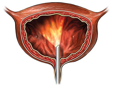 Cystoscopy of the Bladder