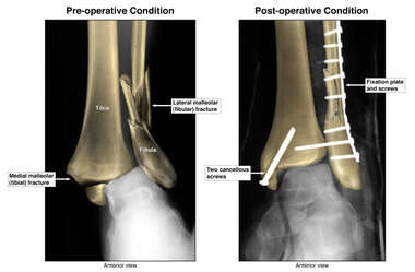 Bimalleolar Ankle Fracture and Surgical Fixation