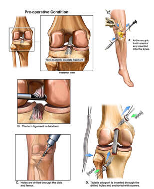 Left Knee Posterior Cruciate Ligament