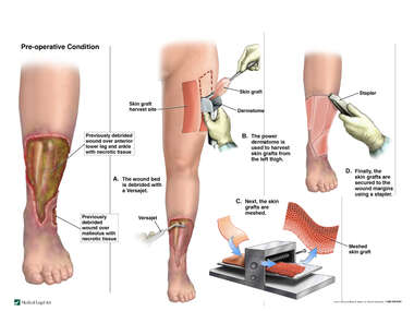 Debridement and Skin Grafting of Lateral Ankle Wound