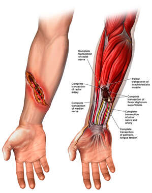 Right Forearm Injuries