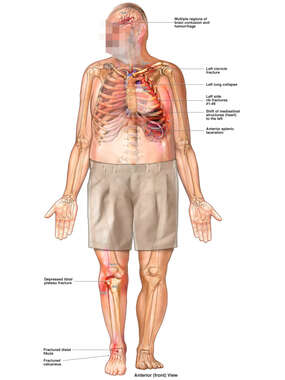 Overview of Injuries