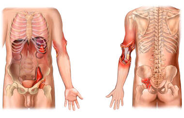Anterior and Posterior Male Torso with Post-accident Injuries to the Abdomen, Left Elbow and Hip