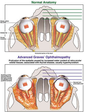 The Ophthalmopathy of Graves Disease