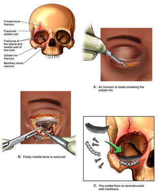 Surgical Repair of Right Orbital Fractures