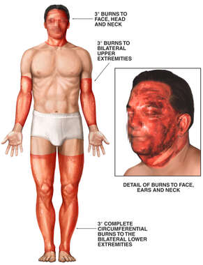 Male Figure with Post-accident 45% Total Body Surface Area Burns