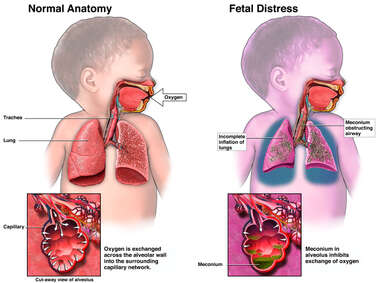 Fetal Distress Due to Aspiration of Meconium