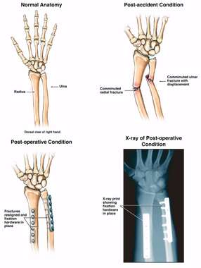 Post-accident Arm Fractures with Surgical Fixation