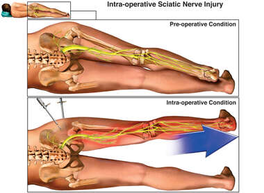 Intra-operative Condition Sciatic Nerve Injury