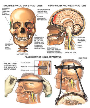 Post-accident Head and Neck Injuries with Halo Fixation