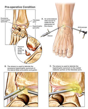 Right Ankle Injuries with Arthroscopic Repairs
