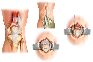Surgical Repair of Left Quadriceps Tendon Tear