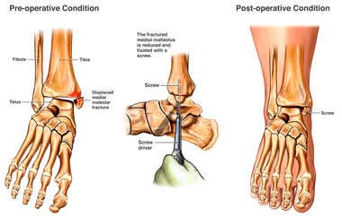 Ankle Fracture Reduction and Fixation