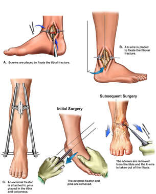 Right Ankle Fixation with Later Hardware Removal Procedures