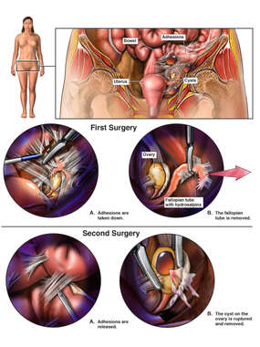Procedures to Remove Adhesions and the Left Fallopian Tube