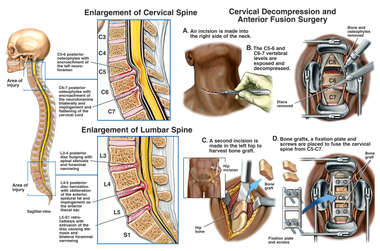 Multiple Spinal Injuries with Surgical Repair of the Neck