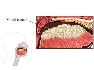 Oral (Mouth) Cancer