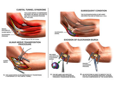 Cubital Tunnel Syndrome and Bursitis of the Elbow with Surgical Release