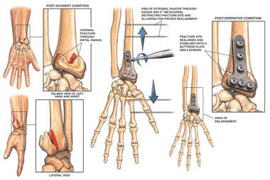 Wrist Fracture with Surgical Fixation Procedure