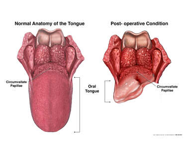 Normal Anatomy of the Tongue versus Post Subtotal Glossectomy