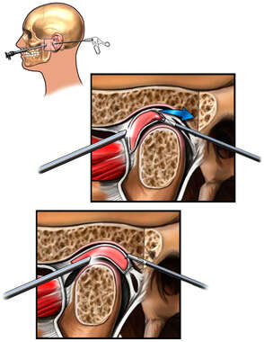 Arthroscopic Temporomandibular Joint (TMJ) Dysfunction Repair