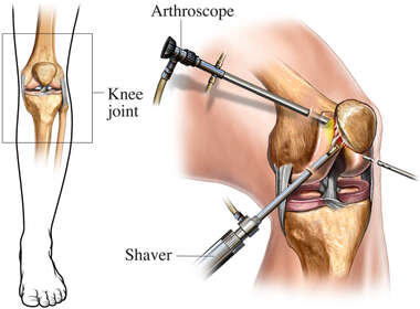 Arthroscopic Knee Surgery Orientation