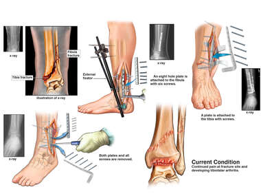 Left Ankle Fractures with Multiple Surgical Repairs