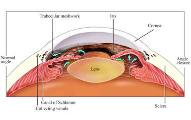 Eye Anatomy - Angle Closure within the Eye