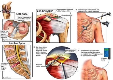 Injuries and Repairs to the Shoulder, Knee and Spine