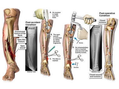 Right Tibia and Fibula Fractures with Surgical Fixation
