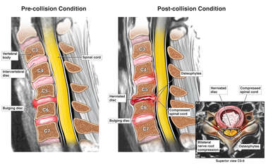 Pre- and Post-collision Cervical Condition