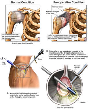 Right Shoulder Instability with Arthroscopic Repair