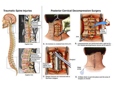 Traumatic Spine Injuries with Posterior Cervical Decompression