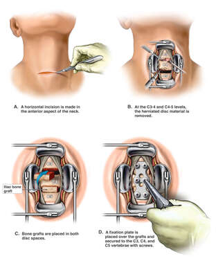 C3-4, C4-5 Double Level Anterior Cervical Fusion