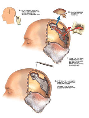 Partial Craniectomy with Debridement of Brain Injury