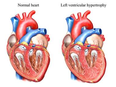 Normal Heart Anatomy vs Left Ventricular Hypertrophy