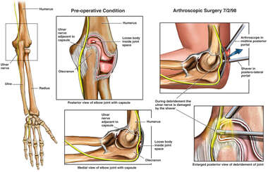 Arthroscopic Elbow Surgery with Ulnar Nerve Injury