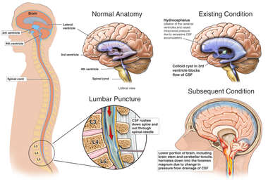 Lumbar Puncture with Subsequent Brain Damage