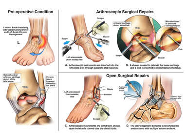Left Ankle Injuries with Arthroscopic and Open Surgery