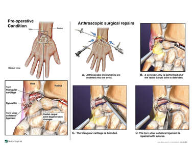 Right Wrist Injuries with Arthroscopic Repairs