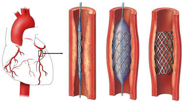 Coronary Artery: Stent Procedure