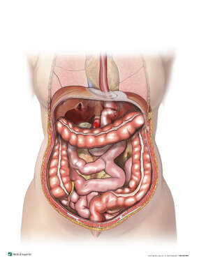Revision of a Gastric Bypass