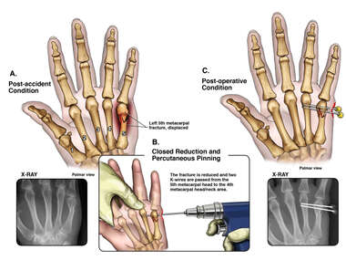 Left Hand Injury with Percutaneous Pinning