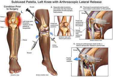 Subluxed Patella, Left Knee with Arthroscopic Lateral Release