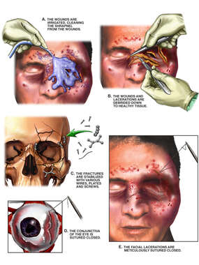 Surgical Reconstruction of Facial Injuries